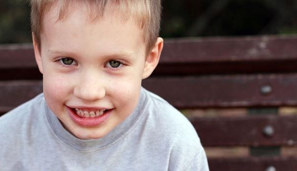 كيف أعرف أن طفلي متوحد؟